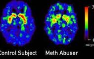 Meth Brain