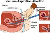 Abortion Process