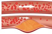 High Cholesterol Diagram