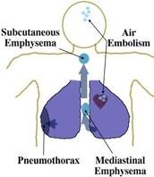 Air Embolisms
