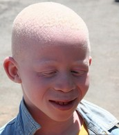 What are the effects of albinism?