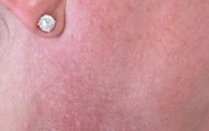 Pigmentation on neck before - shade R4