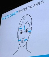 Apply Acute Care strips over any and all expression lines