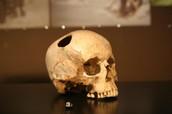 *Trepanationed Skull*