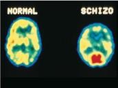 Normal vs Schizo