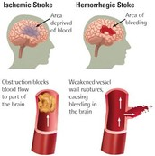 What is a Stroke?