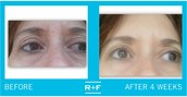 Redefine Multi-Function Eye Cream!