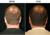 Best hair transplant surgeon in the world