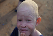 What are the common names of Albinism?