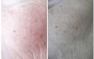 Dee, before and after 5 DAYS of using NeriumAD!