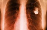 Xray pacemaker:
