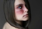 A teen girl that got beaten by a guy