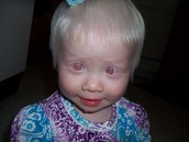 Person with albinism