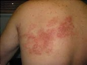 A rash from Zika Fever