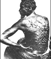Whip marks on a slaves back