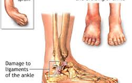 This is a sprain to the ankle.
