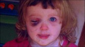 Nothing Is Worse Than Seeing A Child In Pain (Through An Angel's Eyes Foundation, Charity Supporting Children and Families of Retinoblastoma Eye Cancer)