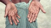 Lead Poisoning- Hands