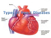 Diseases associated with the Circulatory System