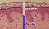 Get up close in personal with this microscopic view of the epidermis and the dermis!