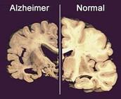 De hersenen van een normaal iemand en iemand met Alzheimer
