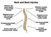Possible Neck and Back Injuries