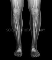 X-Ray of human legs and feet