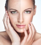 Choosing the Right Experts for Skin Rejuvenation in Adelaide