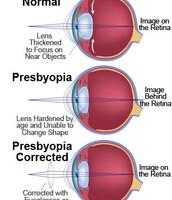 Example Three: Stages of Presbyopia