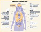 bulimia in body form