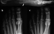 MRI of Stress Fracture