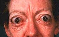 Eyes due to Grave Disease
