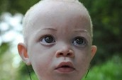 Albinism in a Human
