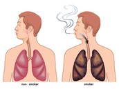 Your lungs before and after the use of tobacco.