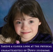 what is down syndrome
