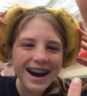 Me casually wearing 2 bananas on my head