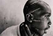 A gentleman from the Rwanda Genocide