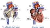 Artificial Hearts: