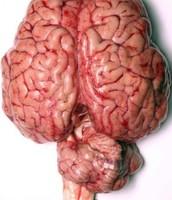 Brain - Organ