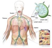 What is Hodgkin's Disease?