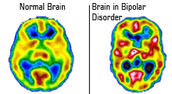 How is Bi-Polar Disorder treated?