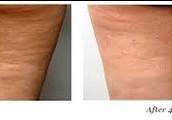 Cellulite-reduction, skin rejuvenation