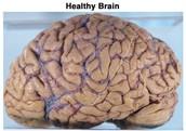 Healthy Aged Brain