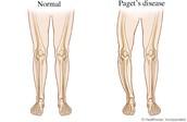 Normal Leg vs. a Paget Diseased Leg