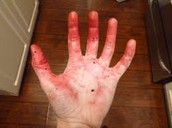 If you dont  Wash your hands this will happen
