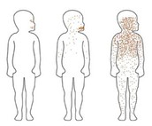 Stages of Measles