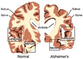 Healthy Brain VS. Alzheimer's Disease