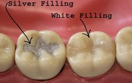 Cavity Fillings