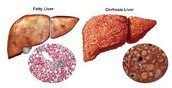 Alcohol's Effect On the Liver