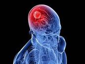 What is Brain Cancer?